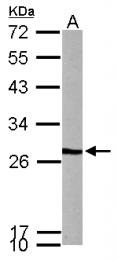 GTX114875 - PFDN3 / VBP1