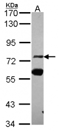 GTX114892 - ZNF74