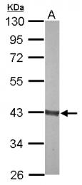 GTX114914 - Aldolase B / ALDOB