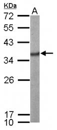 GTX114918 - SFRS1 (SF2)
