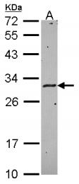 GTX114939 - HLA class II DM alpha / HLA-DMA