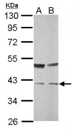 GTX114956 - Transaldolase (TALDO1)