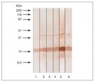 GTX11497 - Calcitonin
