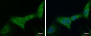 GTX114970 - ATP5F1