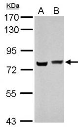 GTX114999 - hnRNP-M / HNRNPM