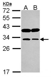 GTX115007 - Inositol monophosphatase / IMPA1