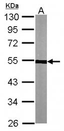 GTX115048 - alpha Tubulin / TUBA1A / TUBA3
