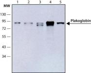 GTX11506 - Junction plakoglobin