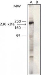 GTX11507 - Catenin delta-1