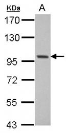 GTX115074 - RBM10