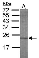 GTX115079 - HYAL3 / Hyaluronidase-3