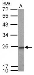GTX115082 - Transgelin-2 (TAGLN2)