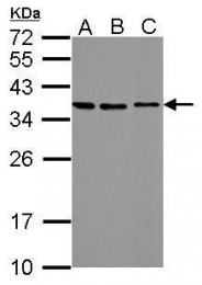 GTX115113 - Stanniocalcin 2 / STC2