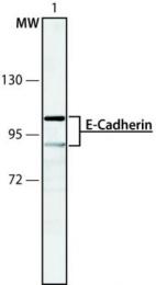 GTX11512 - CD324 / Cadherin-1