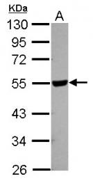 GTX115123 - HYAL2 / Hyaluronidase-2