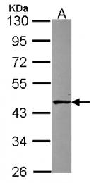 GTX115145 - ALKBH1