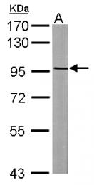 GTX115146 - ASAP2 / DDEF2