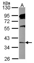 GTX115147 - ALDH1A2 / RALDH2