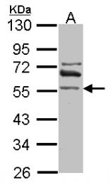 GTX115148 - ALDH1A2 / RALDH2