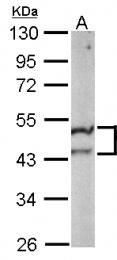 GTX115152 - ST3GAL5