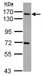 GTX115153 - Synaptojanin-2 / SYNJ2
