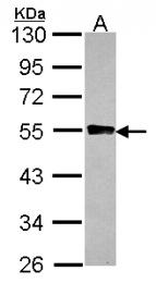 GTX115157 - Glycogenin-2 (GYG2)
