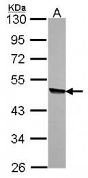 GTX115169 - Kynureninase