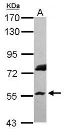 GTX115176 - RNF8