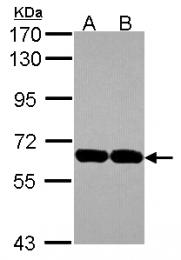 GTX115186 - USP14