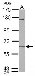 GTX115187 - USP14