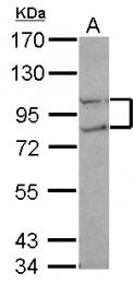 GTX115194 - CTDP1