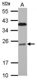 GTX115214 - Bcl-7C