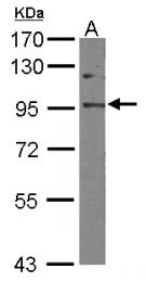 GTX115222 - U5-116 kDa / EFTUD2