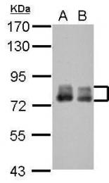 GTX115226 - PLAA / PLAP