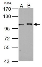 GTX115235 - DDX23
