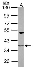 GTX115242 - HOMER3