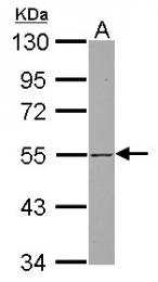GTX115245 - SH3BP5