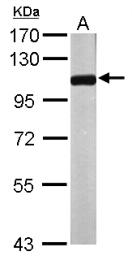 GTX115247 - NPEPPS