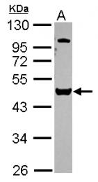 GTX115249 - VPS4B