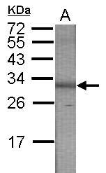 GTX115253 - PUNC / IGDCC3