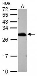 GTX115262 - Peroxiredoxin-6 / PRDX6