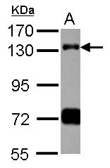 GTX115294 - RNF40