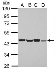 GTX115303 - PSMD6