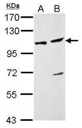 GTX115309 - DDX46
