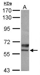 GTX115321 - USP3