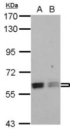 GTX115327 - ROD1