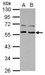 GTX115333 - TOM1L1