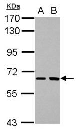 GTX115335 - SH2D3A