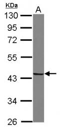 GTX115340 - Snurportin-1 (SNUPN)