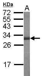 GTX115341 - USH1C  / Harmonin